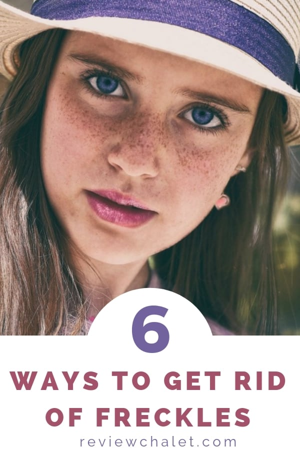 If you wonder how to get rid of freckles, you'll love these 6 easy ways! #freckles #naturalbeauty #fairskin #fairsskinnedface #prettyface #agespots #beauty #beautiful